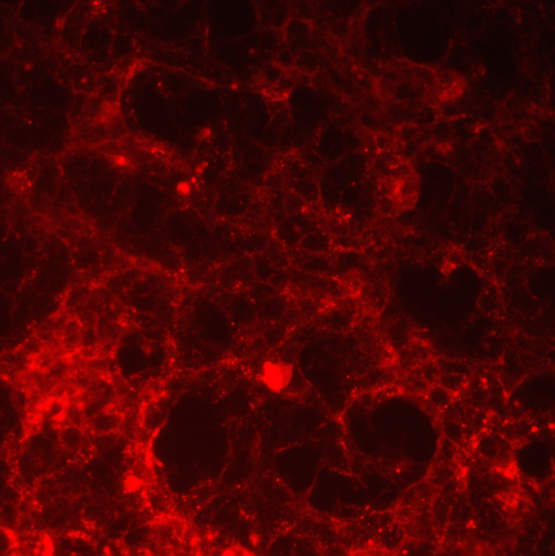 Immunocytochemistry: HEK-293 cells were transfected with the p75 neurotrophin receptor and were labeled with Cy3 labeled 192-IgG (20 ug/ul).  Analysis performed on a Leica DMIL Fluorescent Microscope.  Image was captured at 20X magnification using SPOT imaging software.
